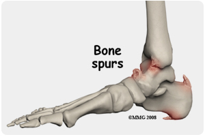 suffolk va foot doctors for bone spurs