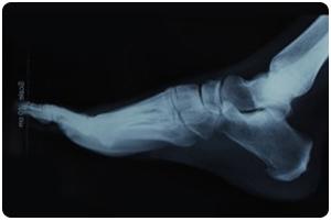 digital x-rays for podiatry care