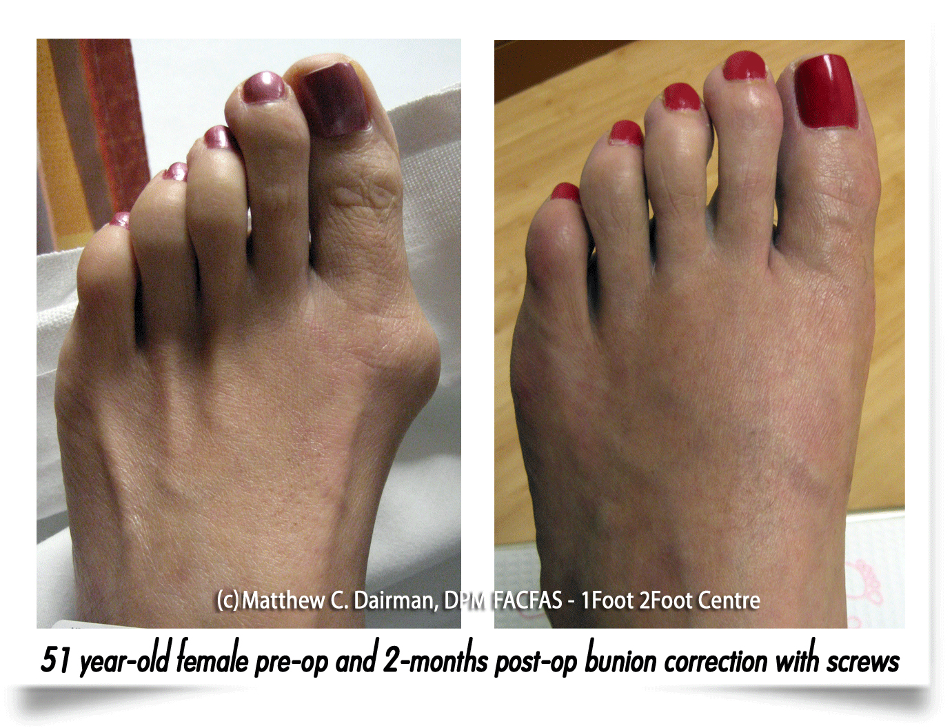 suffolk foot-doctors for bunions