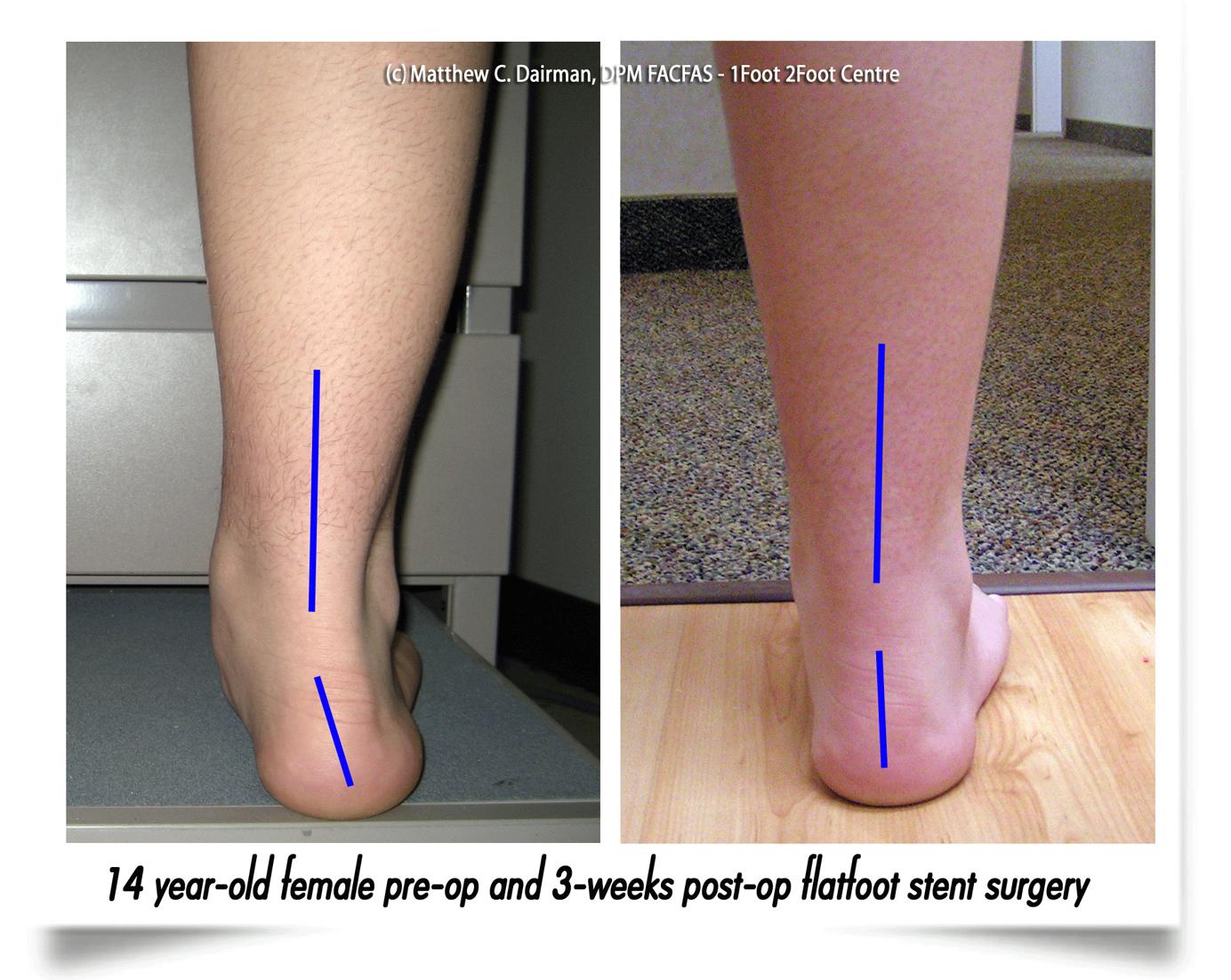 suffolk foot-doctors for flat feet
