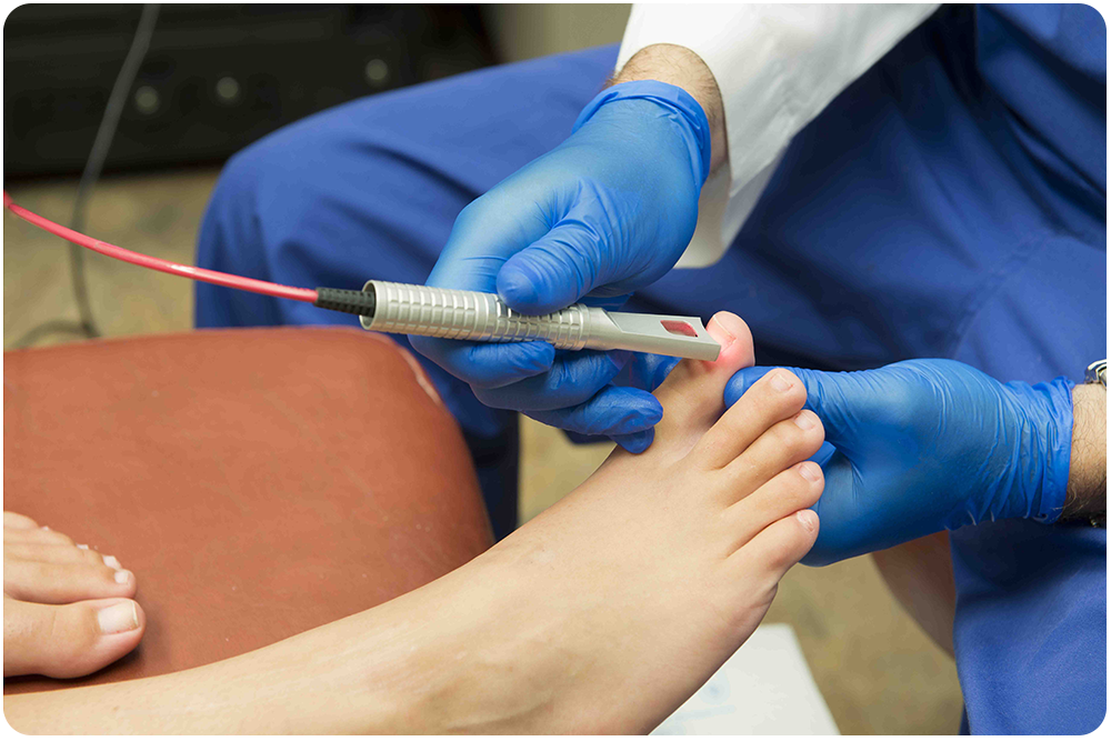 suffolk foot doctor for laser treatment for toenail fungus