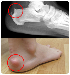 suffolk foot doctors for achilles pain