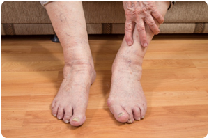 suffolk foot doctors for diabetic foot care