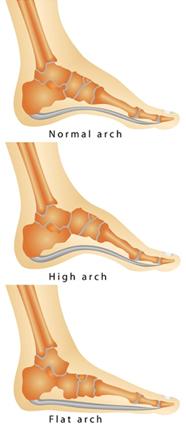 suffolk foot doctors for flat feet