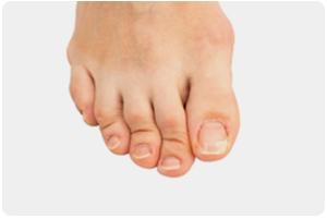 suffolk foot doctors for hammertoes